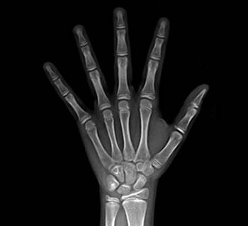 Radiografias Carpais